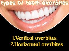 In vertical overbites, the top teeth overlap the lower teeth too much.  In horizontal overbites, the top teeth protrude too much.  Either can cause problems. These include the fracture of a top front tooth, painful gum cuts, or tooth decay in hard-to-clean areas.