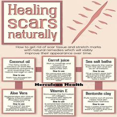 Natural Cures Not Medicine: 6 Tips On Healing Scars Naturally