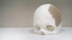 OsteoFab patient-specific cranial flap