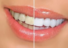 Whiter Teeth: Baking Soda and Lemon... This may be one of the most popular of the natural teeth whitening home remedies. The chemical reaction of baking soda with the citrus of lemon juice has a smile-brightening effect. Either one of these ingredients works well, but together they are super-effective.