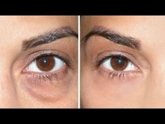 How to Cover Dark Circles + Under Eye Bags!! - YouTube