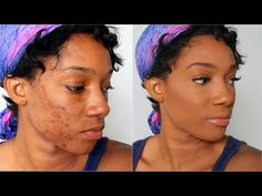 How to Fully Cover Acne Spots and Scars - Flawless Acne Foundation Tutorial on Dark Skin Black Women - YouTube