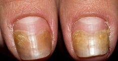 Nails, Beauty, Arc, Custard, Finger Nails, Ongles, Nail, Cosmetology, Sns Nails