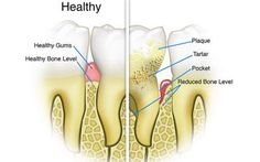 4 Ways To Remove Teeth Plaque At Home NaturallyPositiveMed | Stay Healthy. Live Happy