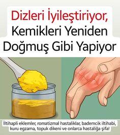 Rheumatoid Arthritis, Medicinal Plants, Medicine, Skin Care, Healthy, Food, Villa Plan, Aspirin, Allah