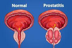 síntoma de próstata mann