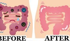 A 2 Item Remedy That Remove Pounds Easily From The Colon
