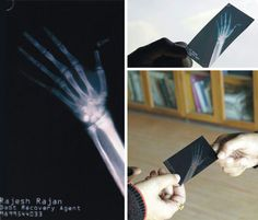"""""""If you don't give me the money, I'm gonna break your finger."""" That's the message that this effective business card by a debt recovery agent sends with its x-ray image of a broken thumb tip. Of course, that doesn't mean that Mr. Rahesh Ranjan, who commissioned the card, is really going to break your finger – but it might make you a little more likely to pay up quickly."""