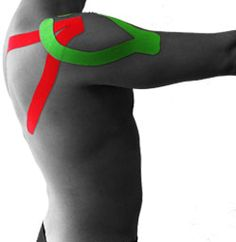 ARES Kinesiology Tape: Frozen Shoulder