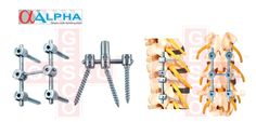 www.gescoworld.com/spine-implants.php - Spine Implants Manufacturers, Exporters & Suppliers in chennai, India.