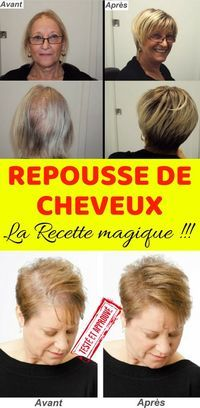 Magic recipe for quick hair regrowth Quick Hairstyles, Short Hairstyles For Women, Short Hair Cuts, Short Hair Styles, Grow Natural Hair Faster, Regrow Hair, Hair Loss Women, Hair Loss Remedies, Hair Regrowth
