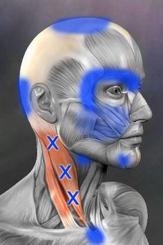 Sternocleidomastoid (SCM) - trigger points and referred pain patterns massage therapy can help identify them and aid you to get rid of them. Referred Pain, Trigger Point Therapy, Reflexology Massage, Sports Massage, Massage Techniques, Trigger Points, Neck Pain, Massage Therapy, Physical Therapy