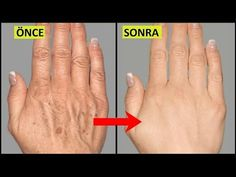 Home Remedies for Anti Aging and Wrinkles Hello everyone. In this video we are going to present you 5 amazing natural home remedies for wrinkle free hands. Having wrinkles on your hands is one of the Back Acne Treatment, Home Remedies For Wrinkles, Natural Home Remedies, Face Mapping, How To Get Rid Of Acne, Strong Hair, Skin Food, Skin Care, Natural Remedies