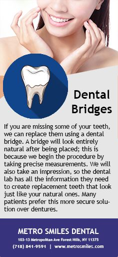 If you are missing teeth, a dental bridge might be a good option for you. #Bridge #DentalBridge #Dentist #PerfectTeeth #Smile