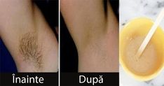 How to Remove Unwanted Hair Permanently? Natural Ways for Unwanted Hair Removal! Beauty Care, Diy Beauty, Beauty Hacks, Excessive Sweating, Unwanted Hair, Unwanted Facial, Tips Belleza, Natural Solutions, Hair Removal