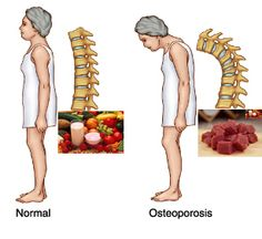 Find here the 4 Steps to Prevent Osteoporosis. It affects of American women. Don't be one of them. Osteoporosis Diet, Health And Nutrition, Health And Wellness, Health Tips, Health Care, Fitness Diet, Health Fitness, Bone Health, Arthritis