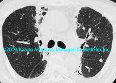 10. 間質性肺炎 症例095:放射線肺障害 来院時のCT,『コンパクトX線アトラスBasic 胸部単純X線写真アトラス vol.1 肺』 Radiology