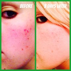 Before using Herbalife Skin Basic Program... And the results just 3 days later! Order here www.gailsonlinehealth.com