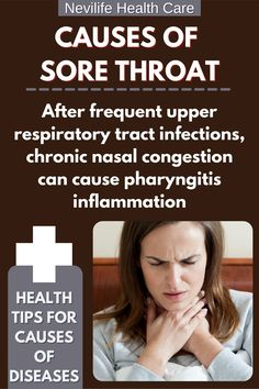 After frequent upper respiractory tract infection, chroniz nasal congestion can cause pharyngitis inflammation. #causesofdisease #sorethroat #inflammation #pharyngitis #respiractory #FlatWarts Cause Of Sore Throat, Oils For Sore Throat, Strep Throat, Cold And Cough Remedies, Home Remedy For Cough, Cold Home Remedies, Get Rid Of Warts, Remove Warts, Natural Remedies For Fever