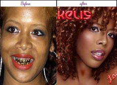 Total Plastic Surgery Brings Kelis Additional Charm On Her Facial Area Following Surgery - http://www.aftersurgeryjob.com/total-plastic-surgery-brings-kelis-additional-charm-facial-following-surgery/