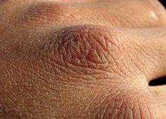 Cara Mengatasi Kulit Kering dan Bersisik Secara Alami. kulit kering bersisik dan keriput. kulit kering bersisik dan gatal. Jangan lupa untuk share