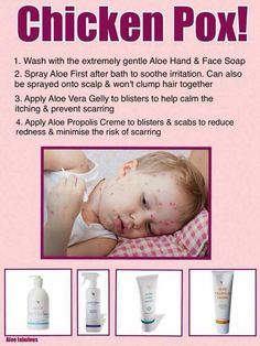 Help for children with Chicken Pox. Tried and tested products to relieve Chicken Pox and reduce scarring. Forever Living Aloe Vera, Forever Aloe, My Forever, Forever Freedom, Forever Living Business, Aloe Vera Skin Care, Chicken Pox, Face Soap, Kids Health