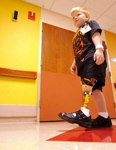 Five-year-old Justin Hudsco walks out of Good Shepherd Rehabilitation Hospital Pediatric Unit with his new prosthetic leg. Read more - http://www.lehighvalleylive.com/breaking-news/index.ssf/2012/03/east_allen_township_five-year-.html