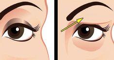 Jak jednoduše odstranit povadlá oční víčka a napnout uvolněnou pokožku