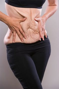 Sagging Skin: A Result of Rapid Weight Loss