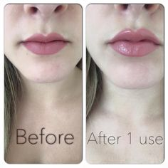 A Lipgloss that does this after one use? No stinging either. Perfect addition to your makeup bag! Beauty Care, Beauty Skin, Health And Beauty, Top Beauty, Beauty Box, Beauty Tips, Lip Plumping Balm, Lip Balm, Contouring Lip Gloss