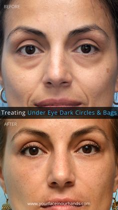 Dermal Fillers - A great way to get rid of the dark under 👀 circles! Results by Dr. David Mabrie in San Francisco.   #MabriePhotoGallery #beforeandafter #plasticsurgery #nomakeup #darkundereyecircles #getridof