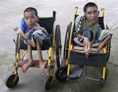 agent orange birth defects - Bing Images