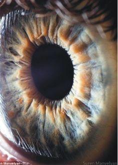 Blog de cursoiridologia : IRIDOLOGIA - CURSO DE IRIDOLOGIA A DISTÂNCIA, ESTUDOS DA ÍRIS -  LINFÁTICA  ÁCIDA - A