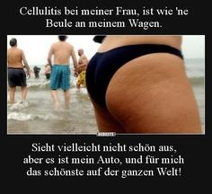 Cellulite in my wife is like a . Cellulite, Funny Cute, Really Funny, Clothes Pictures, Funny Pictures, My Wife Is, Forever Love, Romantic Quotes, Skin Problems