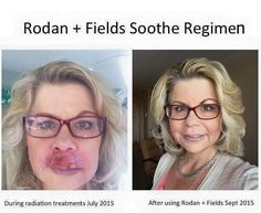 Meet Vicky... she was undergoing radiation on her face for oral cancer when Laura, a Rodan + Fields consultants, gifted her our SOOTHE Regimen. Her before and after photos are nothing short of AMAZING! Our products work, but trust me, this company is SO much more than incredible skincare! It is about connecting with people, loving on people and making a difference in their lives!