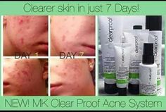 Mary Kay Clearproof Skin Care Line