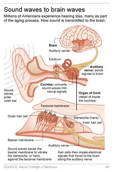 Advisers urge easier access to treatment for hearing loss. Human Ear Diagram, Ear Anatomy, Swimmers Ear, Pharmacology Nursing, Systems Biology, Medical Anatomy, Human Anatomy And Physiology, Nursing Notes, Medical Information