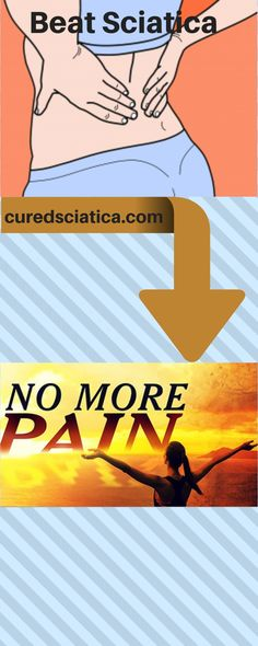 Heres some sciatica treatment tips. These will help to relieve your pain but you should use them along with a solid scia… - Top Trends Treating Sciatica, Sciatica Stretches, Sciatica Symptoms, Sciatica Pain Relief, Sciatic Pain, Headache Relief, Sciatica Pain Treatment, Natural Headache Remedies, Simple