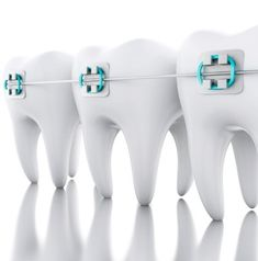 What to do if a Bracket or Wire Breaks (Don't Panic! Dental Logo, Dental Care, Lingual Braces, Dentist Art, Dental Posters, Free Dental, Very Cold, Mouth Guard, Don't Panic