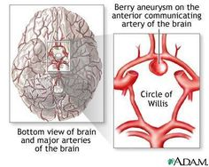 Cerebral aneurysm in the Circle of Willis - where my aneurysms were. Circle Of Willis, Subarachnoid Hemorrhage, Brain Aneurysm, Brain Memory, Traumatic Brain Injury, Anatomy And Physiology, Brain Anatomy, Medical History, Pediatrics