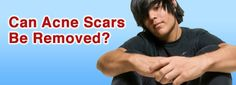 Can Acne Scars Be Removed?  Please see www.acnescartreatment.co.uk for acne scar treatment methods.