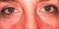 The Many Faces of Rosacea   Rosacea.org