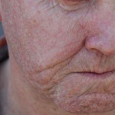 """""""Mi piace"""": 479, commenti: 14 - Vincent Van Dyke Effects (@vincentvandykefx) su Instagram: """"Detail shot of old age prosthetic makeup. #vvdfx #makeupfx #vincentvandykefx #vincentvandykeeffects…"""""""