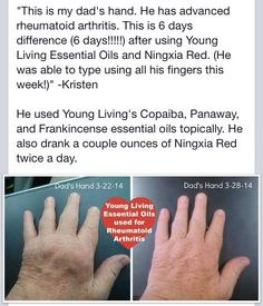 Wow!! Rheumatoid Arthritis Essential oils heal naturally www.youngliving.com #becomeamember   sponsor ID #1867642