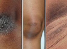 REMOVE DARK SKIN ON NECK, ARMPITS, ELBOWS, KNEES WITH THIS POWERFUL TREATMENTS