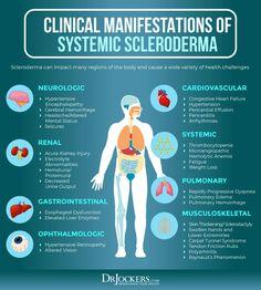 Inflammatory Arthritis, Psoriatic Arthritis, Scleroderma Symptoms, Hemolytic Anemia, Autoimmune Diet, Chiropractic Care, Reduce Inflammation, How To Stay Healthy, Chronic Illness