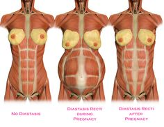 What is Diastasis Recti? How to do exercise with Diastasis Recti? What you should and should not do if you have an abdominal separation after pregnancy. What Is Diastasis Recti, Healing Diastasis Recti, Diastasis Recti Exercises, Fitness Workouts, Fitness Tips, Fitness Video, Fitness Plan, Diástase Abdominal, Mommy Workout