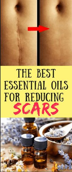 The Best Essential Oils for Reducing Scars – C/R http://www.wartalooza.com/general-information/warts-on-fingers