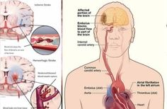 Pengertian Stroke Dan Penyebabnya, Dalam kesmatan kali ini kami akan membahas tentang pengertian stroke, penyabab stroke, gejala stroke dan cara mengobati stroke.