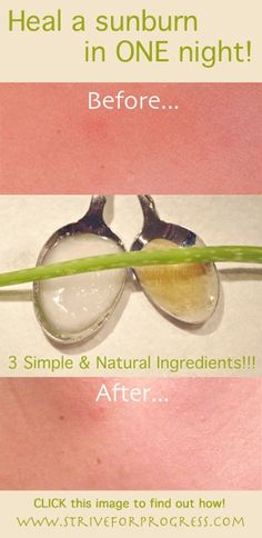 heal a sunburn in one night with coconut oil, honey, propolis, aloe vera